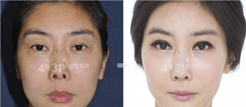 鼻修复对比案例 韩国4月31日整形医院