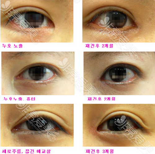 EVE整形医院眼睛修复案例