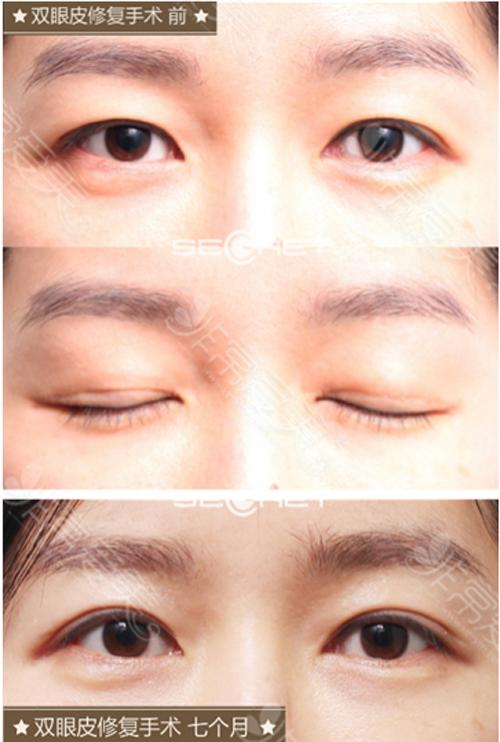 希克丽医院眼睛修复效果对比图