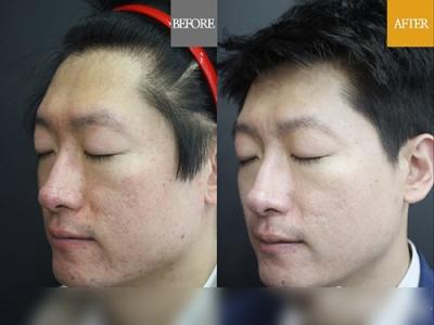 童颜中心面部痘印治疗前后对比照片