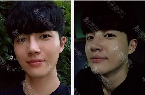 韩国男士隆鼻真人案例