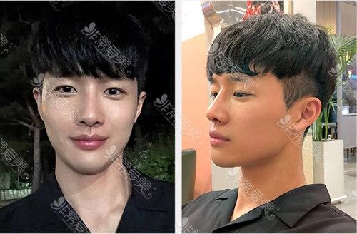 韩国秀美颜男士隆鼻案例