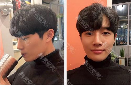 韩国秀美颜男生割双眼皮效果图