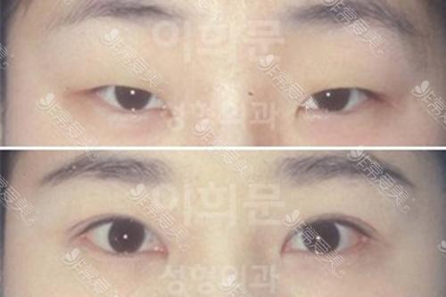 韩国eyemagic医院双眼皮、内眼角手术案例