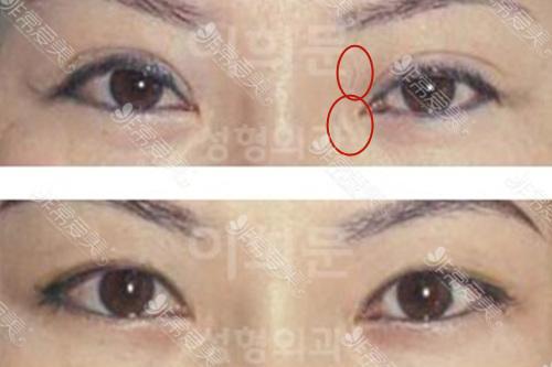 韩国eyemagic医院内眼角疤痕怎么去除
