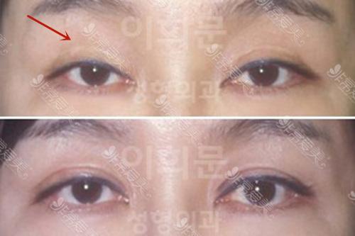 双眼皮修复是怎么做的案例图