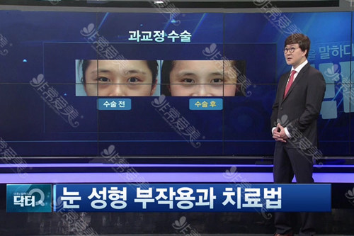 韩国李喜文双眼皮修复要从新割吗