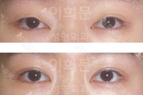 韩国李喜文双眼皮修复要从新割吗真人案例效果图