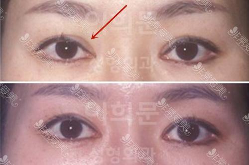 双眼皮手术失败的图片