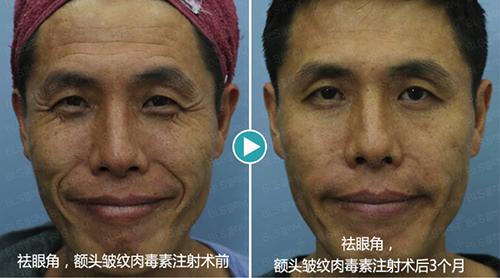 韩国BLS整形外科面部注射祛皱纹手术对比案例
