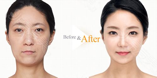 韩国德莱茵整形外科面部填充手术案例