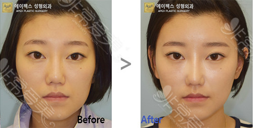 韩国医院吸脂+填充手术案例