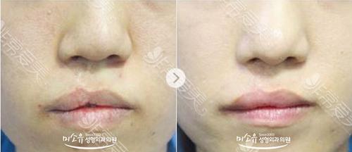 美所有整形外科唇腭裂治疗前后图