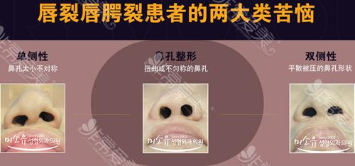 唇腭裂鼻孔不对称