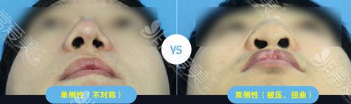 唇裂单侧性及双侧性鼻孔形态