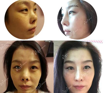 韩国4月31日整形外科鼻修复案例