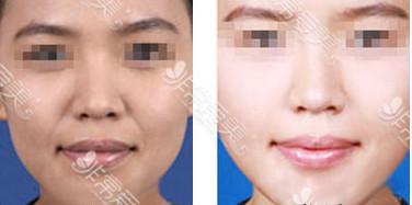 韩国哪家皮肤科好?