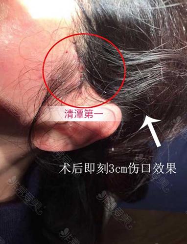 韩国清潭first医院提升手术实拍