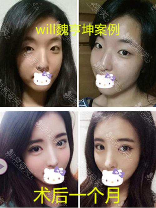 韩国WILL整形医院鼻修复前后图