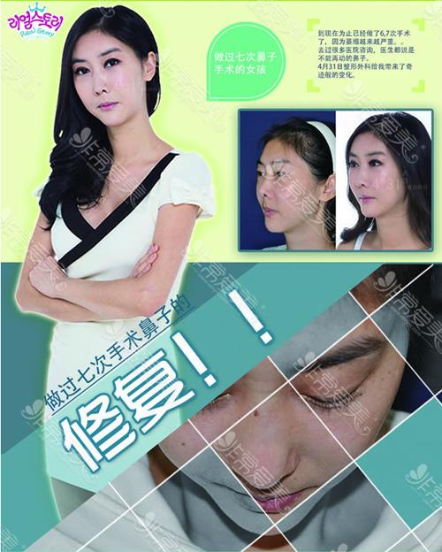 韩国4月31日医院鼻修复案例