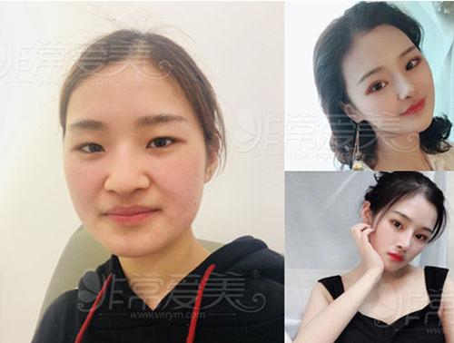 韩国纯真整形外科鼻修复案例