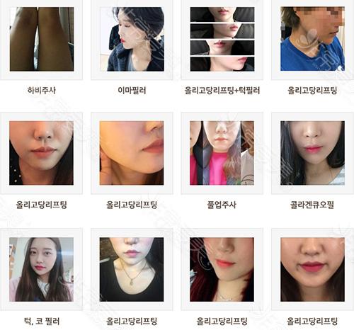 很多小仙女选择韩国raffine艾菲妮
