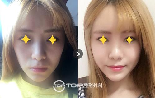 韩国T.O.P整形外科面部填充手术对比案例