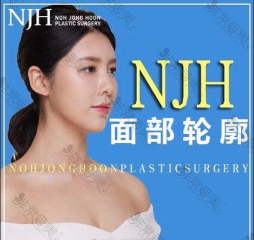 韩国NJH整形外科面部轮廓手术做的好吗
