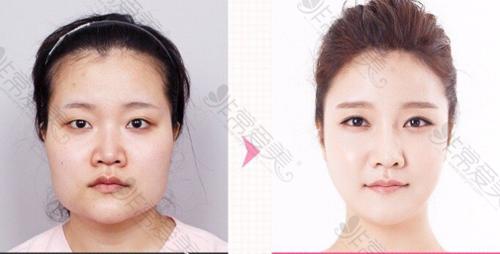 韩国NJH整形外科面部轮廓手术案例