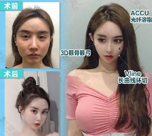 韩国绮林整形外科面部轮廓前后图