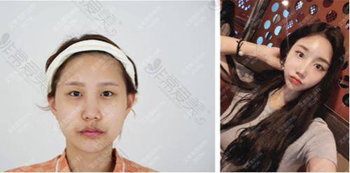 韩国艾恩整形外科眼部整形案例