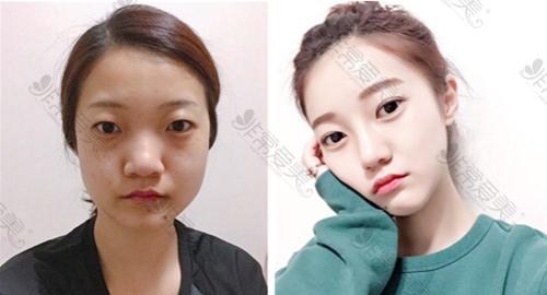 韩国艾恩整形外科双眼皮手术案例