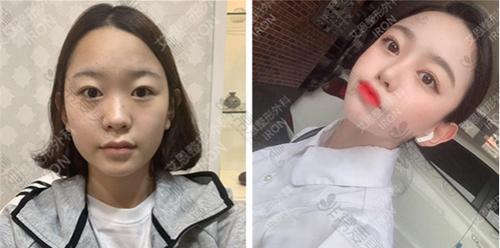韩国艾恩整形外科脂肪填充案例