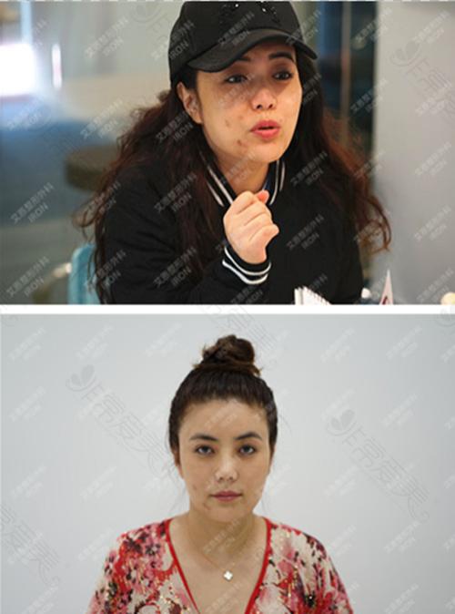 韩国艾恩整形医院鼻修复案例
