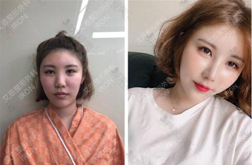 韩国艾恩整形医院隆鼻+鼻翼缩小案例