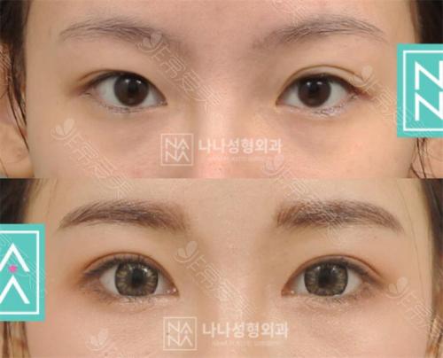 韩国娜娜NANA整形外科眼部整形案例