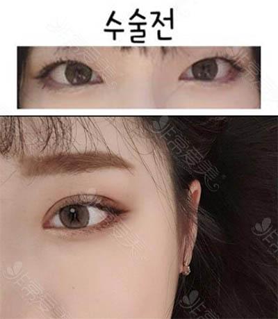 韩国1MM整形外科双眼皮手术案例