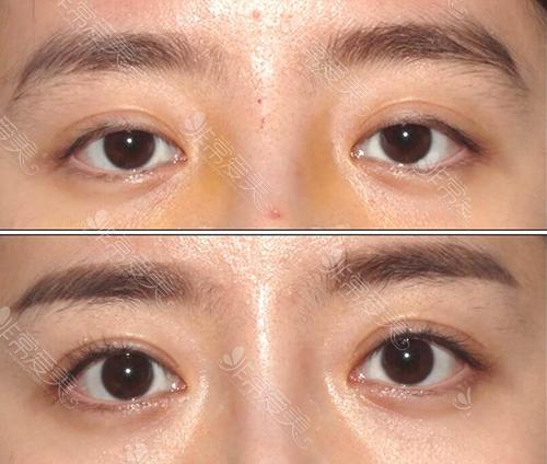 韩国眼提肌矫正前后对比
