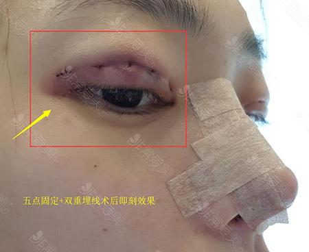 韩国纯真整形外科眼部术后效果