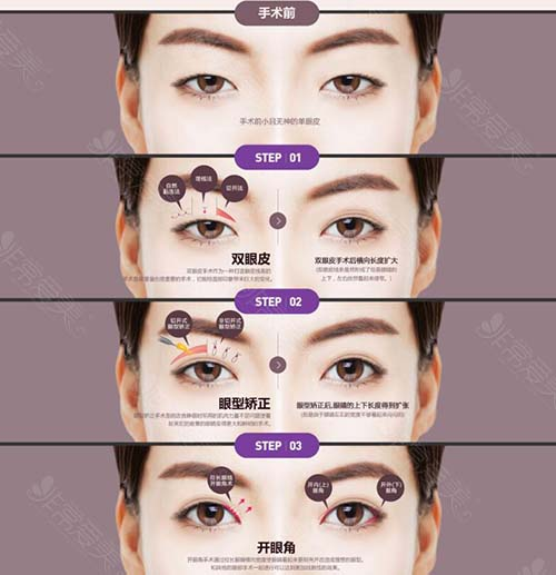 韩国普瑞美整形外科眼整形方法