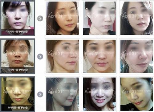 韩国431整形医院颧骨太突出怎么改善案例