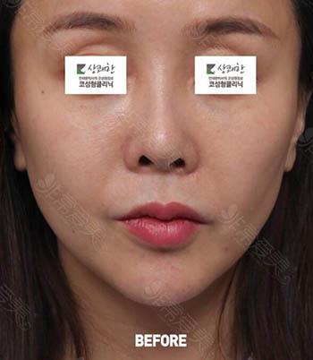 韩国清新整形鼻修复术前