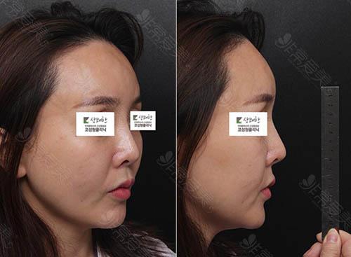 韩国清新整形外科朝天鼻修复术前
