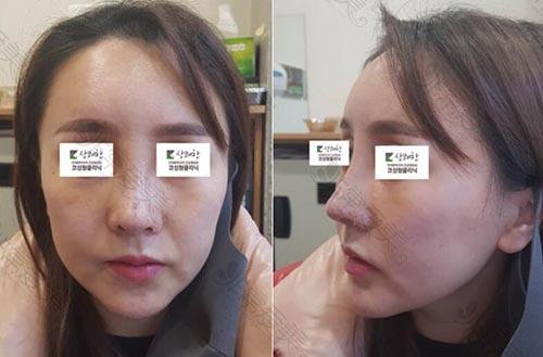 韩国清新整形外科鼻修复7天效果