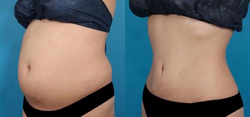 来福琳整形外科腰腹吸脂真人案例对比