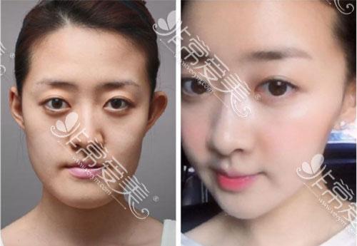 韩国原辰轮廓手术对比案例