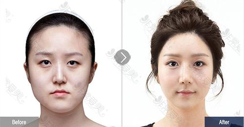 韩国菲斯莱茵医院双鄂手术案例