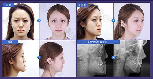 韩国菲斯莱茵医院双鄂手术前后对比