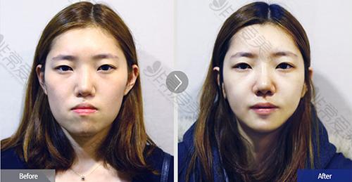 韩国菲斯莱茵医院双鄂手术前后对比案例