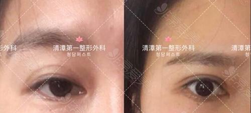 韩国清潭first医院眼手术案例